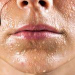 syp-na-tele-ot-pota-e1579550388543 Почему возникают прыщи и сыпь от пота и как от них избавиться?