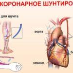 boli-pri-infarkte-miokarda-simptomy-e1579811955952 Инфаркт миокарда - симптомы, лечение, причины