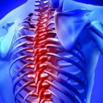 bol-v-spine-v-oblasti-poyasnicy-prichiny-e1578314726686 Боли в спине: как справиться с ними